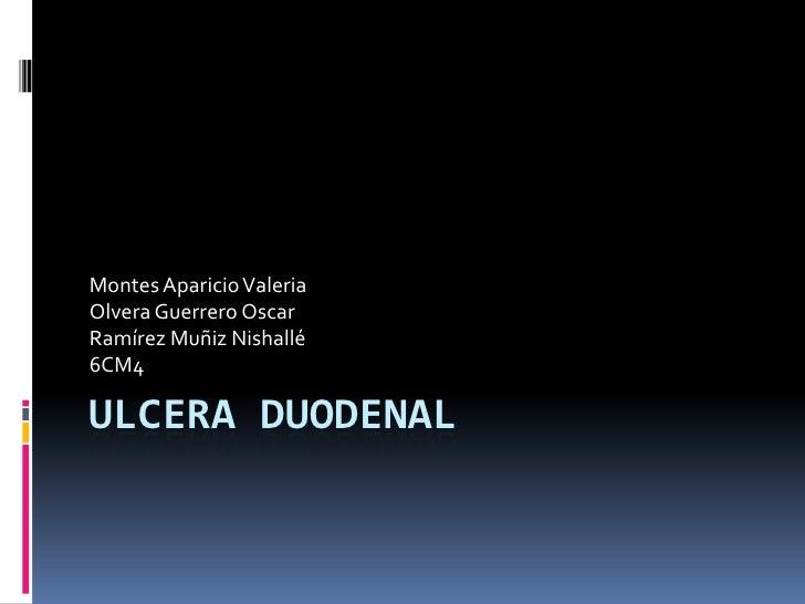 ULCERA DUODENAL<br />Montes Aparicio Valeria<br />Olvera Guerrero Oscar<br />Ramírez Muñiz Nishallé<br />6CM4<br />