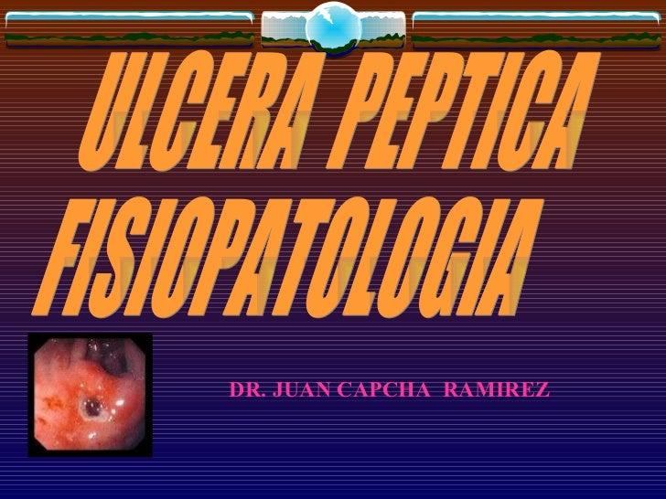 ULCERA  PEPTICA FISIOPATOLOGIA DR. JUAN CAPCHA  RAMIREZ