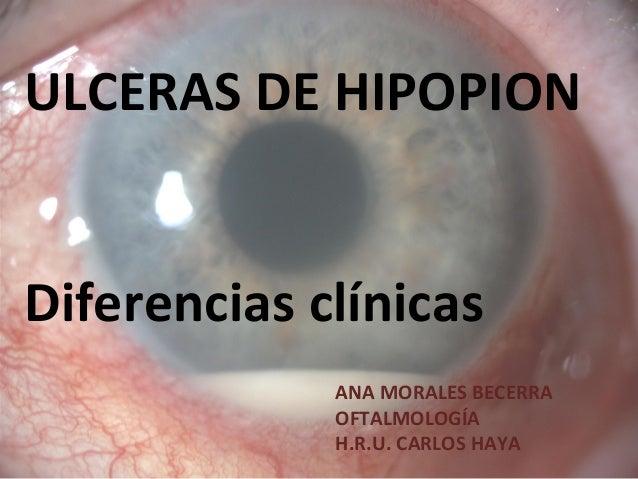 ULCERAS DE HIPOPIONDiferencias clínicasANA MORALES BECERRAOFTALMOLOGÍAH.R.U. CARLOS HAYA