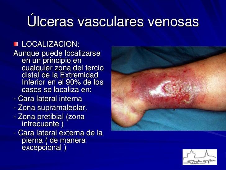 La trombosis en las venas profundas de las extremidades