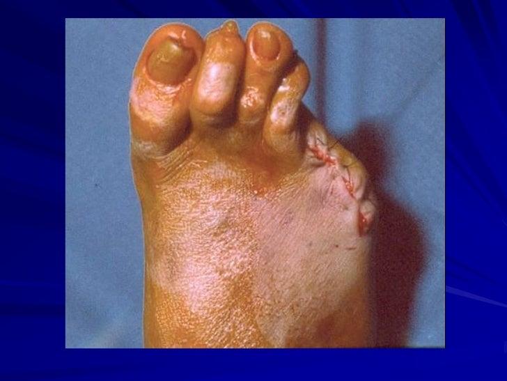 Como se ven las úlceras a varikoze