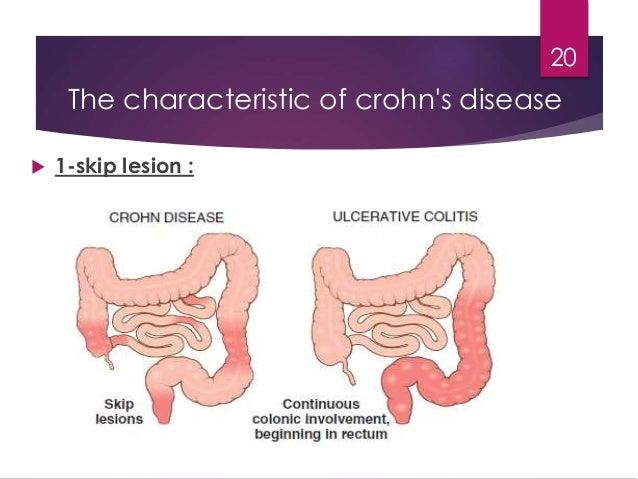 the characteristics of crohns illness an inflammatory bowel disease