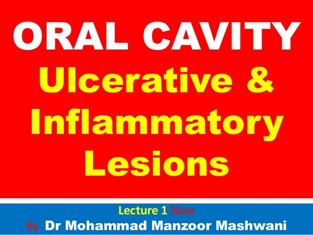 Ulcerative & inflammatory diseases of oral cavity i n