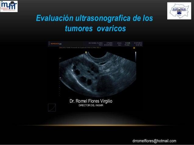 Evaluación ultrasonografica de los tumores ovaricos Dr. Romel Flores Virgilio DIRECTOR DEL IMUMR