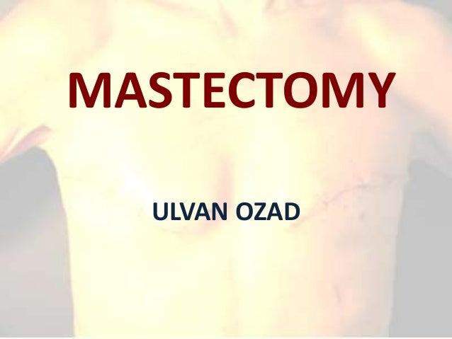 MASTECTOMY ULVAN OZAD
