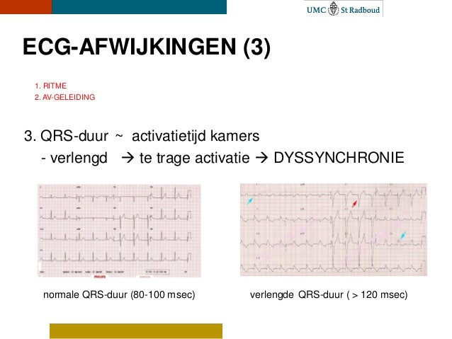 vt cardiologie
