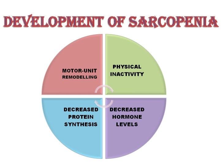Understanding Sarcopenia