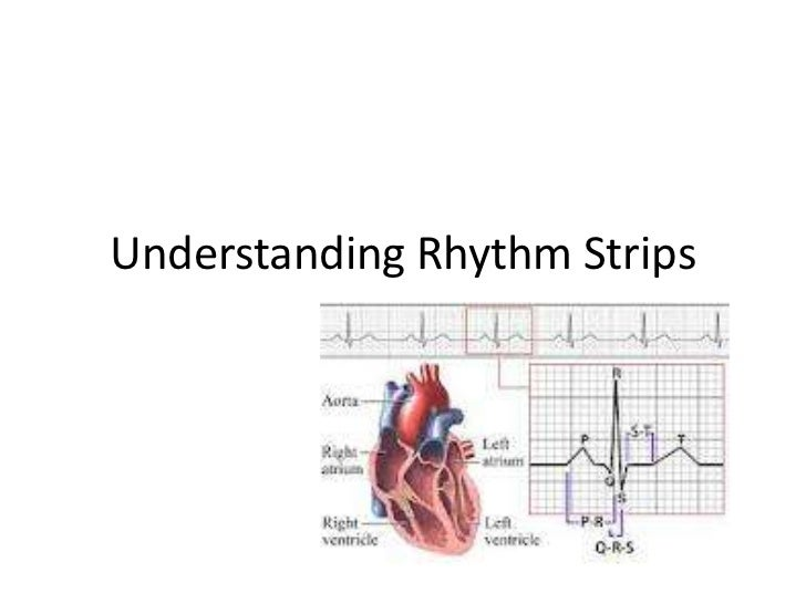 Understanding rhythm strips