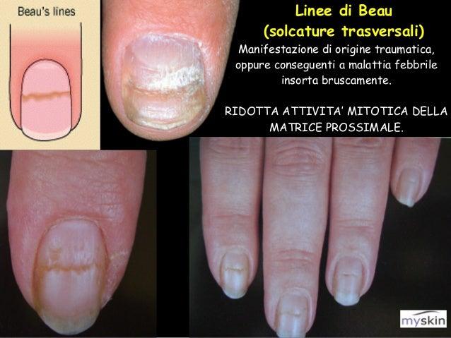 Eczema di disgidrotichesky su un dito di fotografia