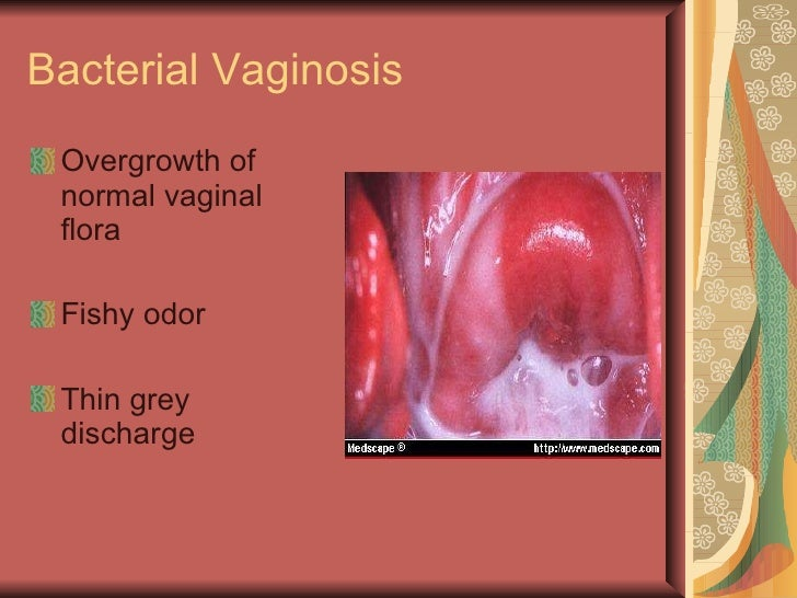 discharge and smell from vagina