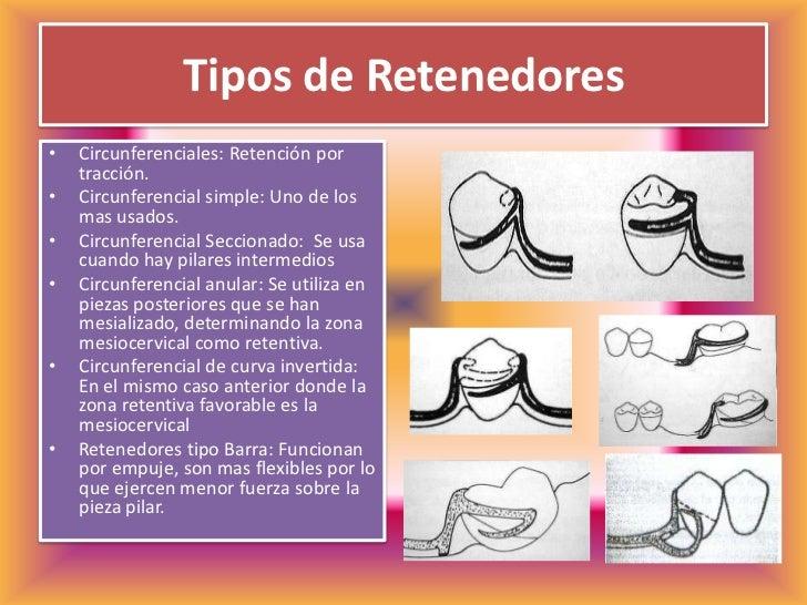 Protesis parcial removible for Tipos de ganchos para cortinas