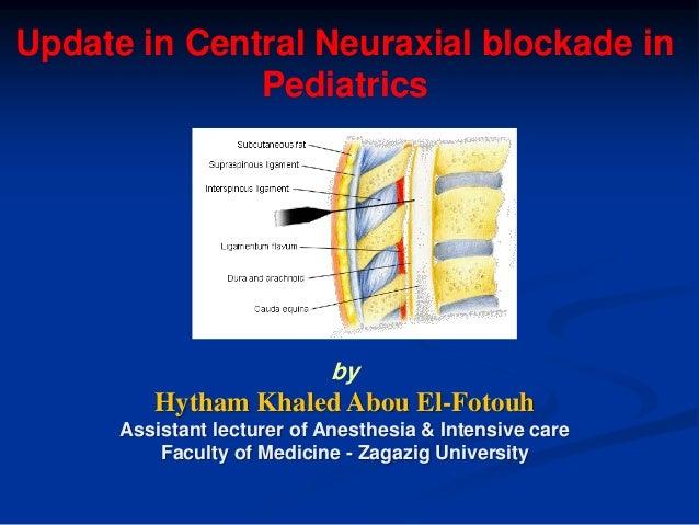 Update in Central Neuraxial Blockade in Pediatrics