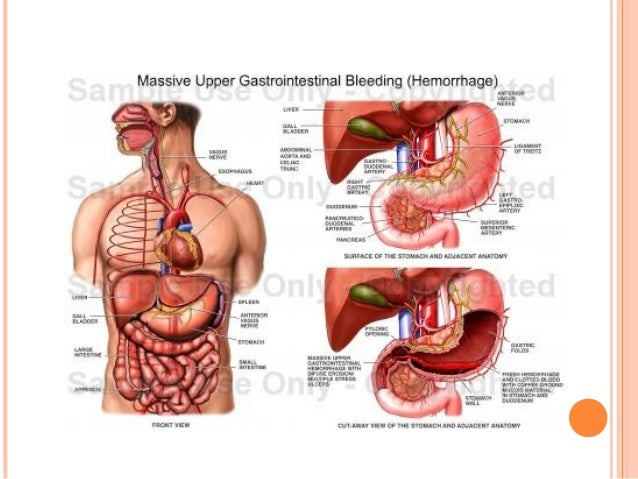 Upper Gastrointestinal Bleeding