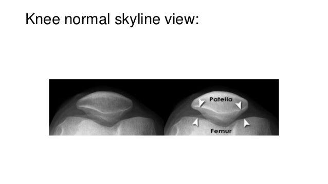 Normal Knee Radiograph Knee Normal Skyline View