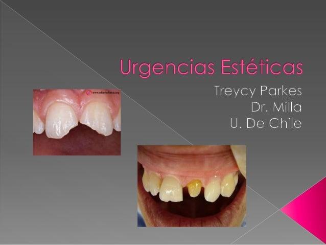  Afección de dientes naturales: FISURAS CORONARIAS (cracksdel esmalte que no significan lapérdida de estructurasdentaria...