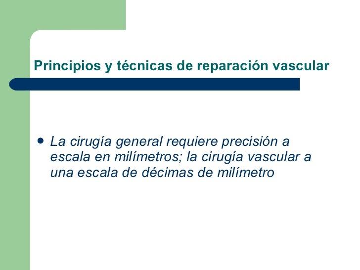 Los ejercicios de la ampliación varicosa