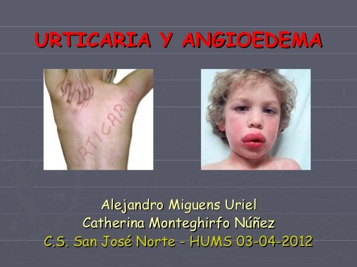 URTICARIA Y ANGIOEDEMA         Alejandro Miguens Uriel      Catherina Monteghirfo NúñezC.S. San José Norte - HUMS 03-04-2012