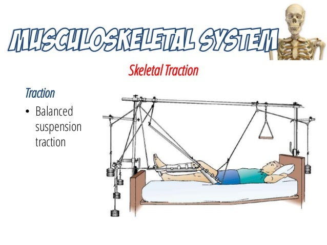nursing interventions and preventative management in skeletal traction Orthopaedic traction: care and management skeletal traction documented in the child's notes/care plan.