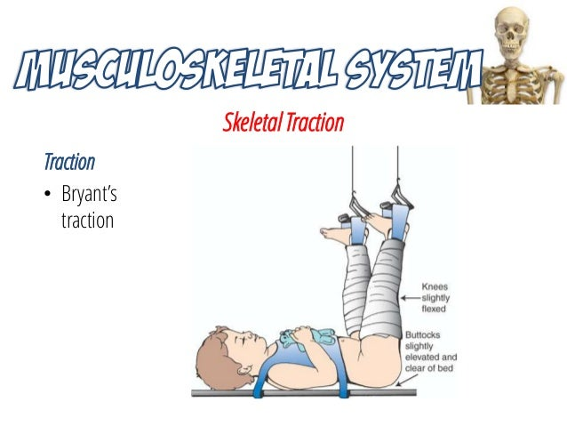 nursing interventions and preventative management in skeletal traction Full course list online learning  anti-lock brake, and traction control systems  interventions, policies and practices.