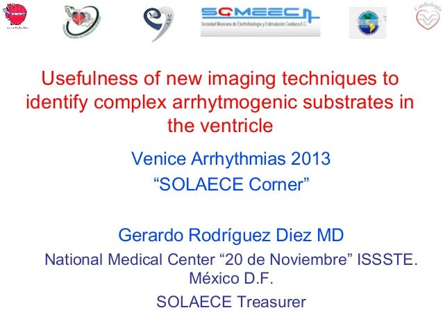 Usefulness of new imaging techniques to identify complex arrhytmogenic substrates in the ventricle Venice Arrhythmias 2013...