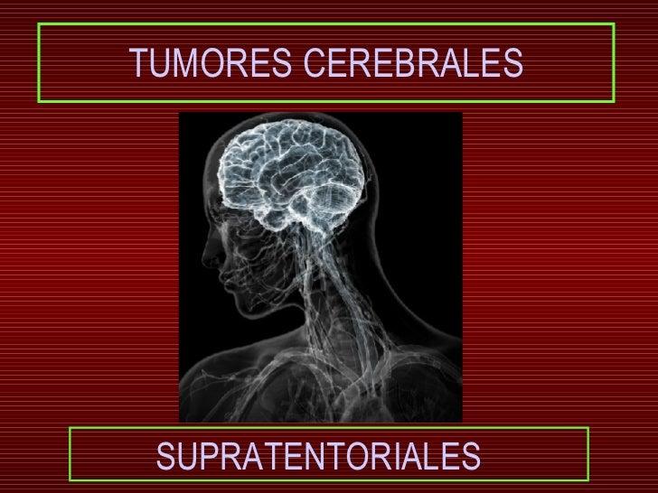 Tumores supratentoriales LQR