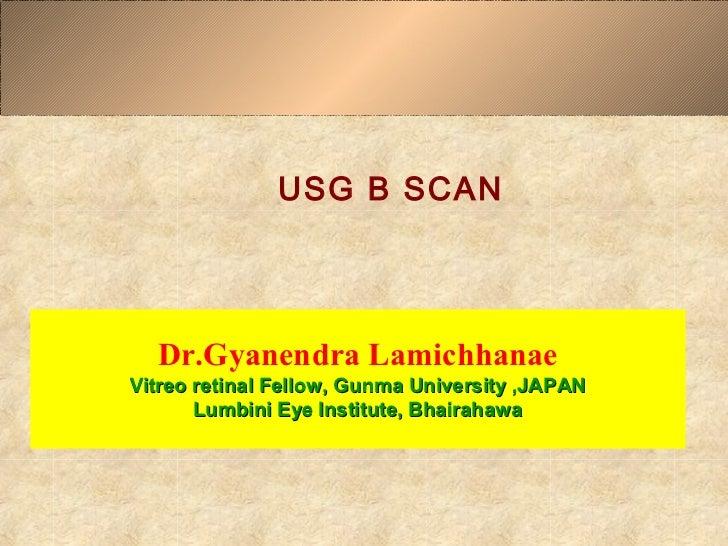 USG B SCAN  Dr.Gyanendra LamichhanaeVitreo retinal Fellow, Gunma University ,JAPAN       Lumbini Eye Institute, Bhairahawa