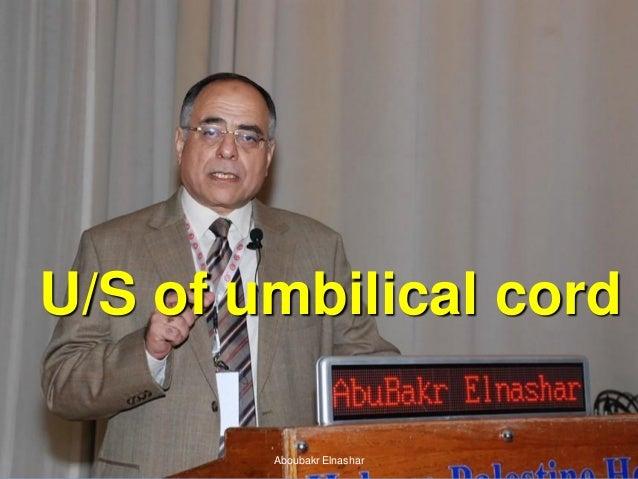 Ultrasonography of  umbilical cord