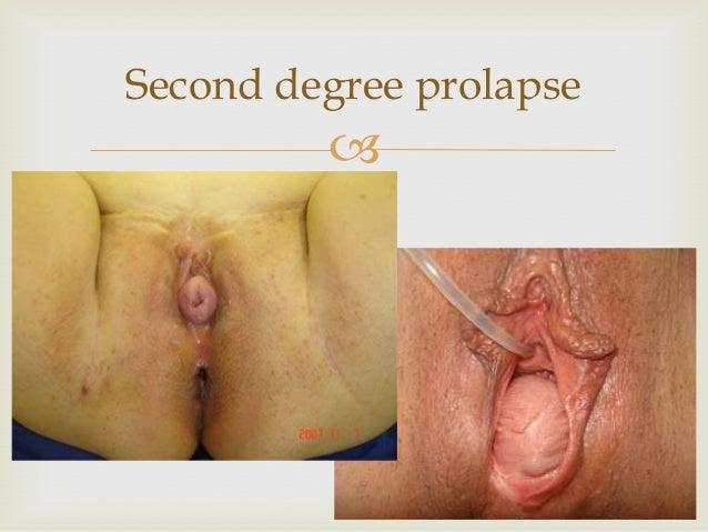 prolaps af uterus ældre kvinder får pik