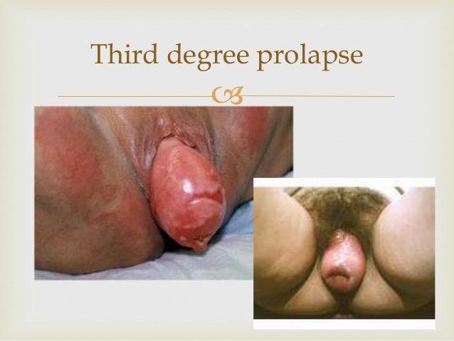 Symptomer på uterin prolaps sex Korsør