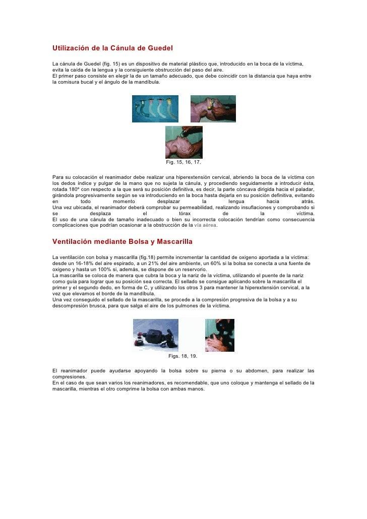 Utilización de la Cánula de Guedel  La cánula de Guedel (fig. 15) es un dispositivo de material plástico que, introducido ...
