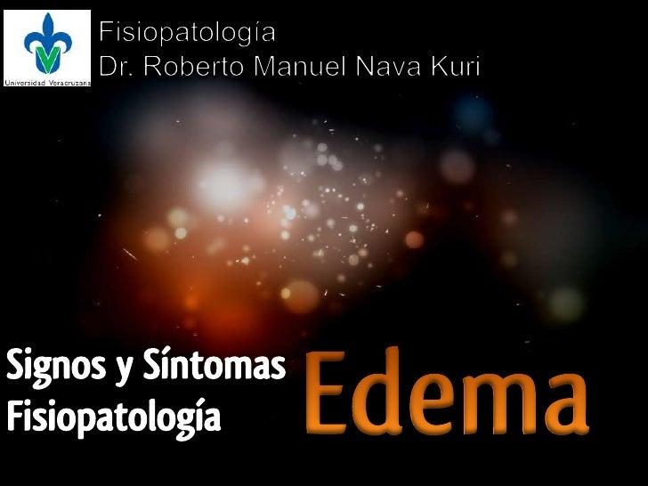 Fisiopatología<br />Dr. Roberto Manuel Nava Kuri<br />Edema<br />Signos y Síntomas<br />Fisiopatología<br />