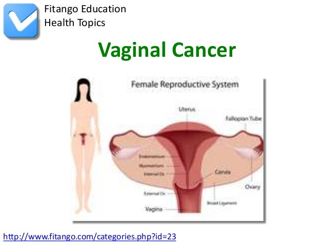 Fitango Education          Health Topics                       Vaginal Cancerhttp://www.fitango.com/categories.php?id=23