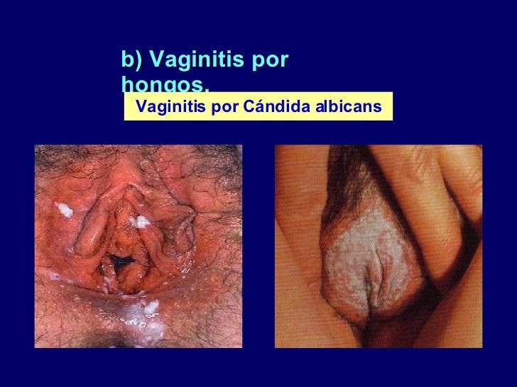 Recurrent vulvovaginal candidiasis - ScienceDirect