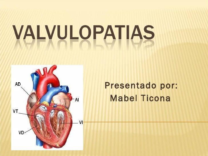 Presentado por: Mabel Ticona