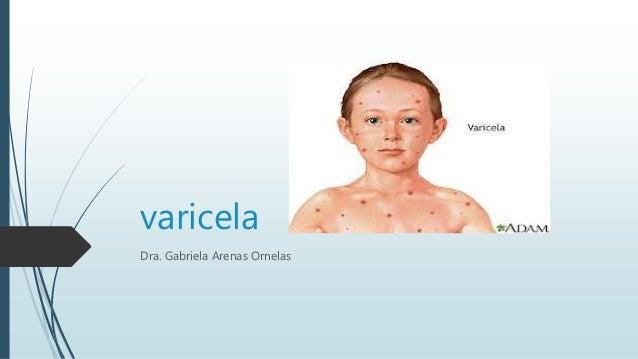 varicela Dra. Gabriela Arenas Ornelas
