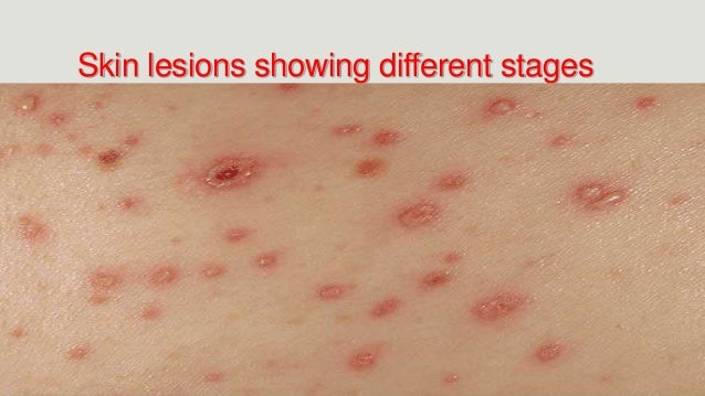 image of chicken pox early stages