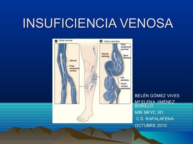 INSUFICIENCIA VENOSA              BELÉN GÓMEZ VIVES              Mª ELENA JIMÉNEZ              BORILLO              MIR MF...