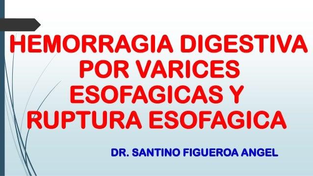 HEMORRAGIA DIGESTIVA POR VARICES ESOFAGICAS Y RUPTURA ESOFAGICA DR. SANTINO FIGUEROA ANGEL