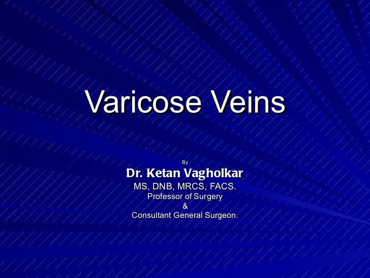 Varicose veins:A never ending problem if mistreated!
