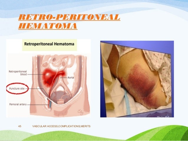 femoral nerve damage after cardiac catheterization – hd-m, Muscles