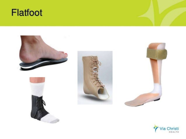 oh my aching feet My custom-made orthoticsmost of us with ra have pain in our feet and ankles  according to an article i read on medscape, up to 85 percent of.