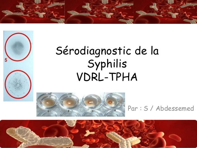 Abdsalah Sérodiagnostic de la Syphilis VDRL-TPHA Par : S / Abdessemed