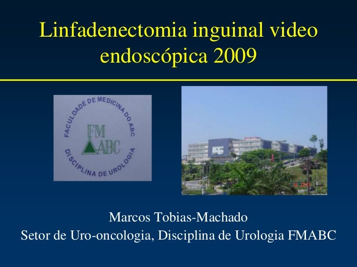 Linfadenectomia inguinal video endoscópica 2009<br />Marcos Tobias-Machado<br />Setor de Uro-oncologia, Disciplina de Urol...