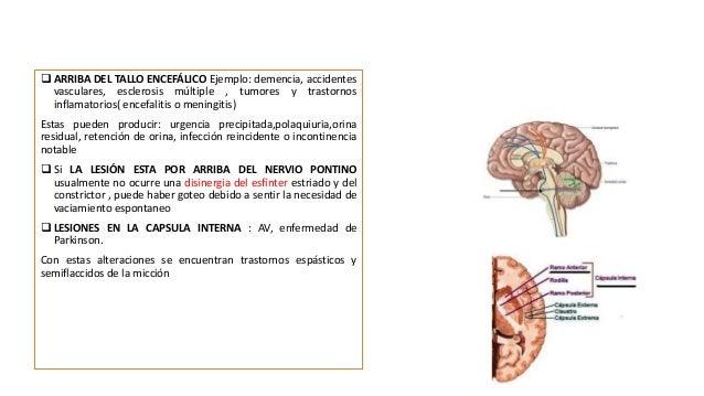 Los ejercicios a la osteocondrosis lumbar y la hernia de la columna vertebral