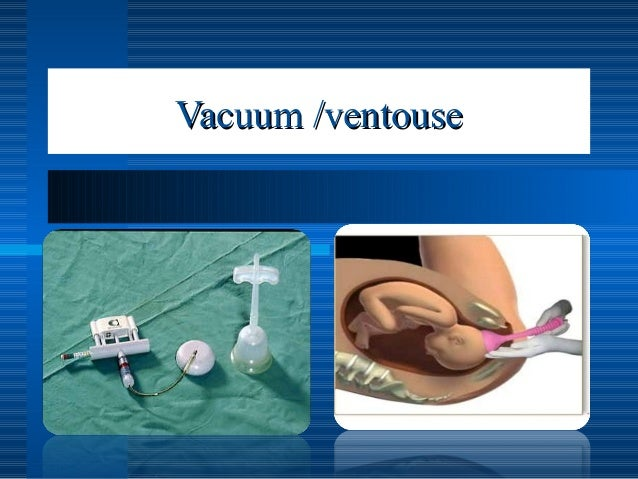 Ventouse And Forceps Related Keywords - Ventouse And ... Vacuum Delivery Complications