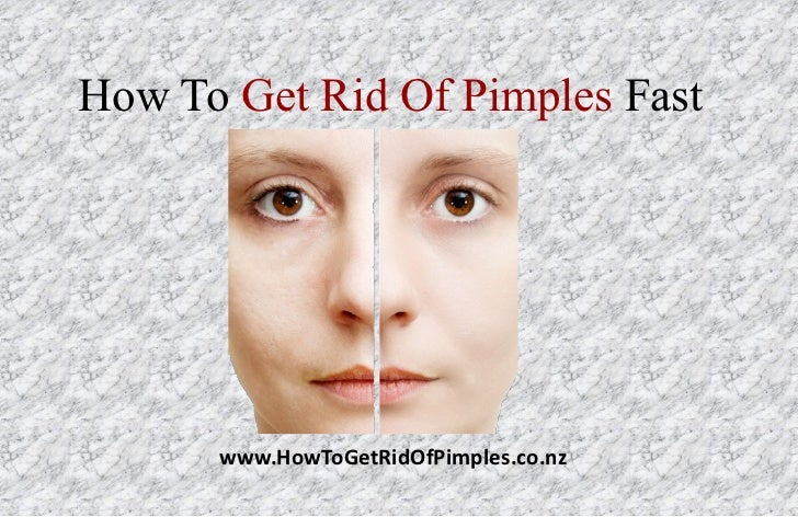 How To Get Rid Of Pimples Fast      www.HowToGetRidOfPimples.co.nz