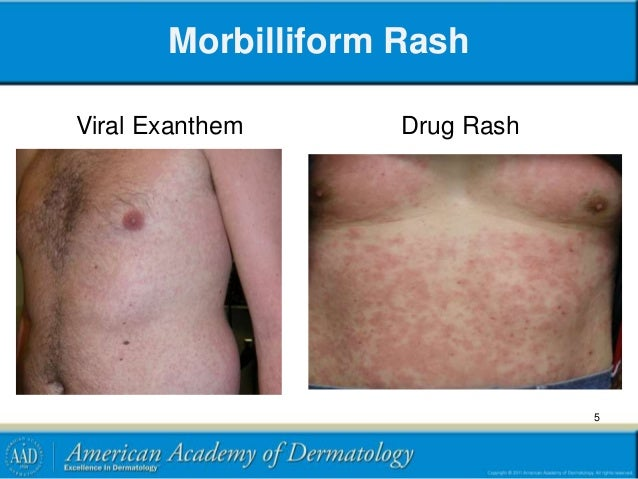 Rash Related Diseases & Conditions - MedicineNet