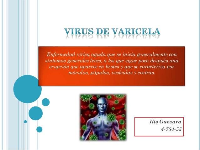 Enfermedad vírica aguda que se inicia generalmente consíntomas generales leves, a los que sigue poco después una  erupción...
