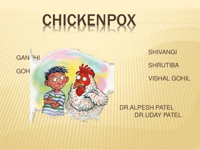 CHICKENPOX SHIVANGI GANDHI SHRUTIBA GOHIL VISHAL GOHIL DR.ALPESH PATEL DR.UDAY PATEL