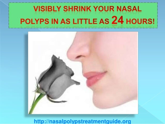 Visibly Shrink Your Nasal Polyps In As Little As 24 hours!